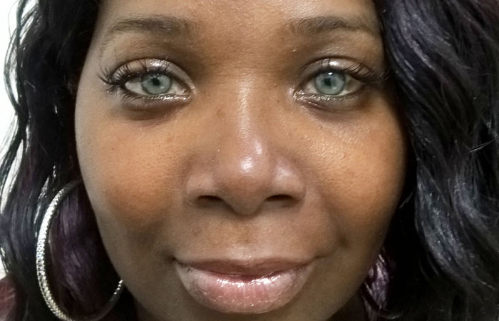 Patient Photos - BrightOcular change eye color without color ...